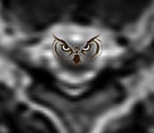Resonancia magnética, en corte axial, con secuencia ponderada en T2, donde se representan los ojos de lechuza que conforman el signo.