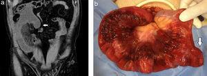 (a) TCMD abdominopelviana en corte coronal, fase portal, de un paciente de 35 años en estudio por obstrucción intestinal aguda: se evidenció distensión de asas intestinales con engrosamiento parietal, aumento de la densidad de la grasa mesentérica e ingurgitación vascular a punto de partida de un divertículo de Meckel (flecha). (b) Fue confirmado en la pieza quirúrgica, planteándose la hipótesis de que este podría haber sido el iniciador del vólvulo (flecha).