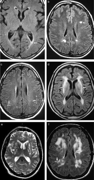 Diagnósticos diferenciales de leucoaraiosis: (a) ependimitis granularis, (b) esclerosis múltiple, (c) vasculitis, (d) leucomalacia, (e) espacios de Virchow-Robin, (f) CADASIL (flechas).