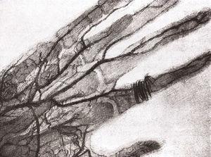 Primera angiografía (17 de enero de 1896).