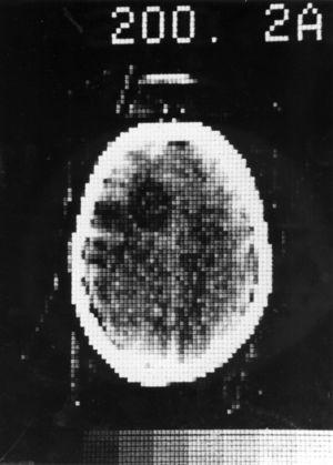 Primera tomografía computada, 1972 (cortesía de A. Thomas, Reino Unido).