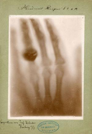 La mano de la esposa.
