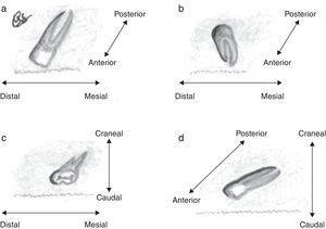Ilustración de las angulaciones que puede tener un SN en función de la orientación y la posición de la corona: (a) vertical, (b) vertical invertida, (c) transversa y (d) horizontal. (a y b) Los dientes verticales pueden orientarse en los ejes anteroposterior y/o mesiodistal: en (a) el diente situado en el maxilar superior presenta una angulación anterior y distal, mientras que en (b) se angula posterior y distalmente. (c) Los SN transversos se orientan en los ejes cráneo-caudal y/o mesiodistal (en c el diente se angula caudal y distalmente). (d) Los dientes horizontales se angulan en ejes cráneo-caudal y/o anteroposterior (en d el diente está angulado anterior y caudalmente).