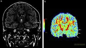Paciente de sexo masculino de 27 años de edad evidencia (a) en secuencia en ponderación T2 FLAIR, en corte coronal, una leve hiperintensidad cortical a nivel del giro temporal superior del hemisferio cerebral izquierdo (flecha) y (b) en el mapa de colores de fracción de anisotropía una disminución de la misma a nivel de sustancia blanca temporal izquierda (flecha) con respecto a la región homóloga contralateral.