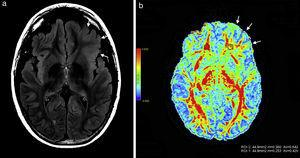 Paciente de sexo masculino de 12 años de edad manifiesta (a) en secuencia en ponderación T2 FLAIR una hiperintensidad en topografía cortical fronto-orbitaria izquierda, un aumento del espesor y la pérdida de interfase entre la sustancia gris y blanca (flechas). (b) En el mapa de colores de fracción de anisotropía se observa una disminución de la misma a nivel de la sustancia blanca fronto-orbitaria izquierda (flechas) con respecto a la región homóloga contralateral.