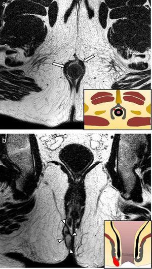 Fístula grado 2: (a) el plano axial en ponderación T2 revela 2 trayectos fistulosos simples en hora 10 y en hora 1 (flechas), mientras que (b) en el plano coronal T2 que muestra un pequeño absceso en la fosa isquioanal derecha, secundario a una fístula interesfinteriana (cabezas de flecha).