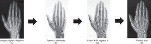 Proceso relieve-radiografía.