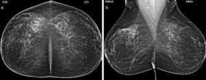 (a) Mamografía de cribado anual anterior, en proyección CC, evidencia glándulas mamarias con ausencia de hallazgos imagenológicos (BIRADS 1). (b) La proyección OML de cribado anual anterior identifica glándula mamaria de apariencia normal (BIRADS 1).