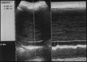 Corte longitudinal de la vena cava inferior en modo M del mismo paciente, 15 minutos después de la reposición, muestra disminución de la variabilidad (aproximadamente 37% de cambio de calibre).