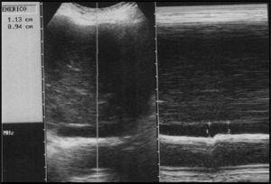 Corte longitudinal de la vena cava inferior en modo M del mismo paciente, 25 minutos después de la reposición, identifica una mayor disminución de la variabilidad (aproximadamente 22%), correlacionable con la respuesta al tratamiento.