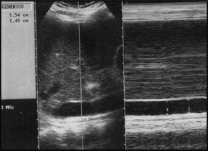 Corte longitudinal de la vena cava inferior con aplicación de modo M de un paciente diferente no muestra cambios significativos en el calibre del vaso.