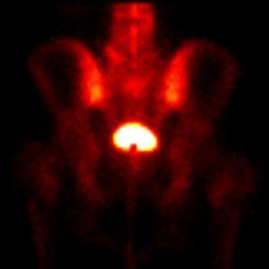 Gammagrafía ósea en proyección posterior de la pelvis muestra hipoactividad en el margen inferior de la vejiga.
