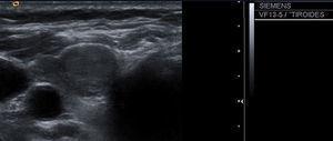 Nódulo tiroideo sólido de ecoestructura homogénea.