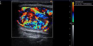 Nódulo tiroideo sólido con vascularización central prominente.