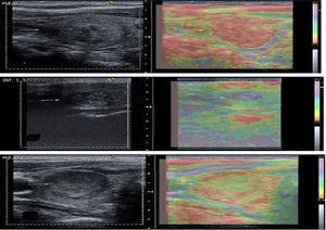 Clasificación de los nódulos tiroideos (flechas) según la elastografía.