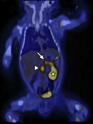 18F-DOPA PET/TC en plano coronal identifica a nivel del parénquima pancreático una acumulación difusa del radiotrazador y tres focos hipermetabólicos a nivel de la cabeza (cabeza de flecha), cuerpo (flecha blanca) y cola (flecha gris). Se señala, además, el riñón izquierdo (estrella amarilla) excretando el radiotrazador.