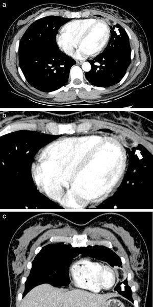 Mujer de 35 años presenta en (a) la TC de tórax contrastada en corte axial con ventana de tejidos blandos una lesión ovoidea encapsulada, con atenuación grasa y presencia de anillo de tejido blando con aumento en la atenuación de la grasa adyacente, localizada en la región epicárdica anterior del lado izquierdo (flecha). (b) La TC de tórax contrastada en el área epicárdica izquierda muestra la lesión encapsulada de baja atenuación (flecha). (c) La reconstrucción coronal de la TC confirma la falta de continuidad con el tejido graso infradiafragmático o mediastinal (flecha).