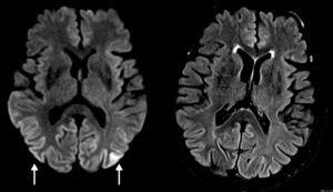 Secuencias axial de difusión y FLAIR: hiperitensidad cortical parieto-occipital bilateral (flechas) en la secuencia DWI en equipo de 3T, mucho menos evidentes en la secuencia FLAIR. La secuencia de difusión es la más sensible para las alteraciones corticales.