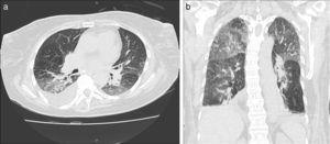 TCMD de tórax con ventana pulmonar en cortes (a) axiales y (b) coronales de un hombre de 52 años de edad con neumonía eosinofílica aguda revela áreas de aumento de la atenuación bilaterales en vidrio esmerilado con tendencia a la consolidación con distribución peribroncovascular y periférica, asociadas a engrosamiento de los septos interlobulillares y derrame pleural bilateral a predomino derecho.