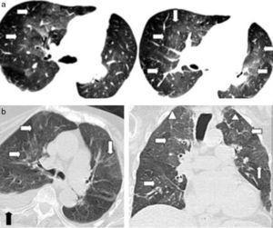 """(a) TCMD de tórax en cortes axiales con ventana pulmonar de una mujer de 79 años de edad con edema agudo pulmonar evidencia áreas de aumento de la atenuación en vidrio esmerilado en ambos campos pulmonares, con distribución peribroncovascular y central en """"alas de mariposa"""" (flechas), a diferencia de la neumonía eosinofílica aguda que presenta distribución periférica. (b) Otra paciente con edema pulmonar donde se observan áreas con densidad en vidrio esmerilado de distribución central (flechas blancas), asociadas a engrosamiento de septos interlobulillares (cabezas de flecha) y derrame pleural derecho (flecha negra). Nótese la cardiomegalia."""