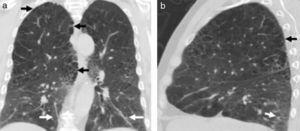 TCMD en corte (a) coronal y (b) sagital de un hombre de 48 años de edad con fibrosis pulmonar y enfisema revela enfisema centrolobulillar y paraseptal con predominio en lóbulos superiores (flechas negras), asociado a imágenes reticulares subpleurales posterobasales (flechas blancas), correspondiente a áreas de fibrosis pulmonar idiopática.