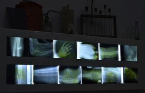 Montaje que muestra radiografías de heridos obtenidas durante la guerra.