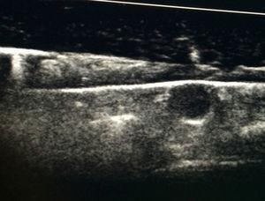 Imagen longitudinal de un lóbulo tiroideo del fantoma, con un nódulo hipoecogénico en su espesor. Sobre el lóbulo tiroideo, otras capas simulan planos musculares y tejido subcutáneo.