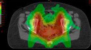 Distribución de dosis según técnica de radioterapia de intensidad modulada.