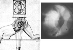 Esquema de dirección del haz de rayos X y su correspondencia radiológica.