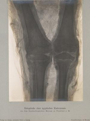 Imagen de rayos X realizada por W. Koenig en 1896.