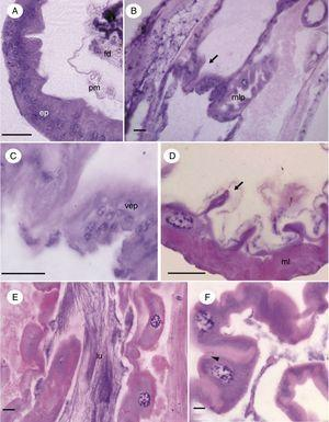 Micrographs of hindgut immature of Chironomus sancticaroli. (A) cross-section between the transitional epithelium of the midgut and hindgut; (B) longitudinal section of the transition region between the mid and hindgut, showing the proctodeal valve (arrow); (C) in detail, epithelium of the proctodeal valve; (D) cross-section of ileum showing extensive muscle layer and the longitudinal folds formed by the epithelium (arrow); (E) longitudinal section of the colon and rectum; (F) cross-section of the epithelium of the colon and rectum demonstrating basal eosinophilia of the cell (arrowhead). p: epithelia; fd: food; lu: lumen; ml: muscle layer; mlp: Malpighian tubule, pm: perithrofic membrane; vep: valve epithelia. Stain: Harris hematoxylin and eosin. Scale bar=20μm.