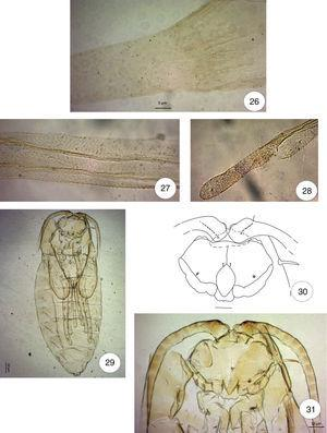 Haplopappusmyia gregaria Maia and Villagra, new genus and species: (26) ovipositor (eversible part), lateral; (27) ovipositor (protrusible part), lateral; (28) female cerci, lateral. (29) pupal exuvia, ventral; (30) pupa head, ventral, scale bar: 0.10mm; (31) pupa, prothoracic spiracle.