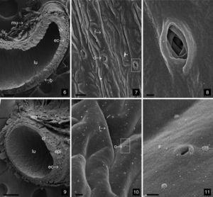 Scanning electron microscopy (SEM) showing of cuticular intima of the spermatheca. (6) The longitudinal section of the seminal receptacle. Scale bar: 100μm; (7) the inner surface of cuticular intima in the seminal receptacle. Scale bar: 2μm; (8) represents the region delimited by the rectangle in 7. Detail of opening a ductule into the lumen. Scale bar: 200nm; (9) cross-section through the spermathecal tube. Scale bar: 100μm; (10) the inner surface of cuticular intima in the spermathecal tube. Scale bar: 2μm; (11) detail of opening in little square in 10. Scale bar: 500nm. l, lumen; ci, cuticular intima; epl, epithelium layer; ec, extracellular cavity; mu, muscle; bl, basal lamina; f, folds; o, opening.