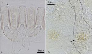 Cylindrotermes brevipilosus: (a) detail of gizzard armature (small arrow: crop pectinate scales), (b) enteric valve, with one of the cushions outlined (large arrow: proximal pad, small arrow: distal portion).