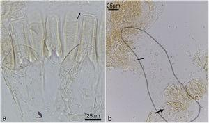 Cylindrotermes macrognathus: (a) detail of gizzard armature (small arrow: crop pectinate scales), (b) enteric valve, with one of the cushions outlined (large arrow: proximal pad, small arrow: distal portion).