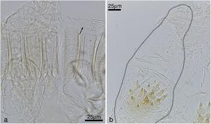 Cylindrotermes parvignathus: (a) detail of gizzard armature (small arrow: crop pectinate scales), (b) enteric valve, with one of the cushions outlined (large arrow: proximal pad, small arrow: distal portion).