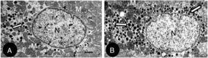 Electron micrographs of left atrium cardiomyocytes in RT (A) and RTG (B) rats. In the RTG rat (B) more granules are observed in the cytoplasm than in the RT. N, nucleus; M, mitochondria.