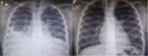 Imagens de radiografia de tórax da paciente em incidência posteroanterior; A – à admissão da paciente, observa‐se obliteração dos seios costofrênicos bilateralmente, com opacidade pleuropulmonar à direita; B – seis meses após a alta, em consulta ambulatorial, radiografia sem alterações.