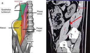 (a) Diagrammatic representation of the supposed direction of spread of injection caudally between quadratus lumborum (QL) and psoas major (PM) muscle. Reproduced with the permission from TeachMeAnatomy. (b) Sagittal CT scan for a volunteer at the level of the apex of the transverse process of L4. (1) QL muscle; (2) PM muscle; (3) Iliacus muscle; (4) Iliac crest; (5) Erector spinae muscle. Red arrow represents the direction of injection and endpoint. Potential plane between psoas major and quadratus lumborum is supposed to enable the injected local anesthetic to spread caudally at postero-lateral surface of PM and beyond fascia iliaca over iliacus muscle.