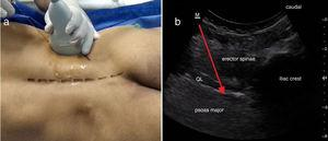 (a) Probe position and needle direction, (b) Characteristic sonographic image of triple muscle layers from posterior to anterior: Erector spinae, Quadratus Lumborun (QL), and Psoas Major (PM) muscles, respectively. Anterior thoraco-lumbar fascia is seen separating QL and PM muscles. Red arrow represents needle path to endpoint of injection.