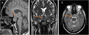 (a–c) Pituitary MRI with and without contrast. (a) Sagittal T1 Sellar mass with obscuration of the pituitary stalk; (b) and (c) coronal and axial T2 – heterogeneous peripherally T2 isointense centrally dark mass with diminished enhancement in the sella turcica extending into the suprasellar cistern with local mass effect. Elevation of the optic chiasm as well as prechiasmatic portion of the left greater than right optic nerve. Findings compatible with pituitary macroadenoma with central hemosiderin deposition suggesting remote hemorrhage.