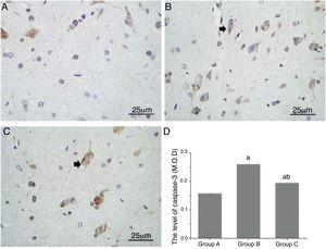 Comparison of the expression of caspase-3 in the spinal cord neurons of the rats. (A, B and C) show the expression of caspase-3 (black arrow) as observed by IHC staining (magnification, 400×). D shows the quantitative comparison of the expression of caspase-3. M.O.D., Mean Optical Density; a, p<0.05 compared with Group A; b, p<0.05 compared with Group B.