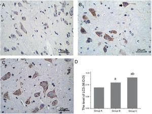 Comparison of the levels of LC3 in the spinal cord neurons of the rats. (A, B and C) show changes in LC3 (black arrow) as observed by IHC staining (magnification, 400×). (D) shows the quantitative comparison of the levels of LC3. M.O.D., Mean Optical Density; a, p<0.05 compared with Group A; b, p<0.05 compared with Group B.