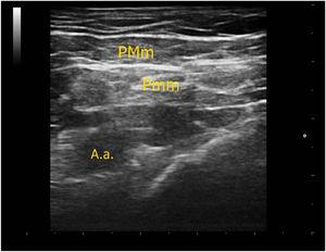 Sonographic anatomy of PECS type-1 block. A.a. indicates axillary artery.