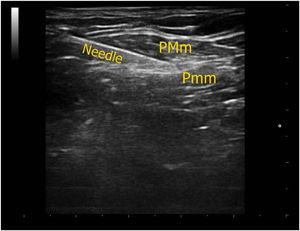 Ultrasound image of needle direction between the muscles (PMm, Pectoralis major; Pmm, Pectoralis minor muscle).
