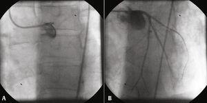 Primeira intervenção coronária percutânea. (A) A oclusão da artéria coronária esquerda principal; (B) resultado com fluxo Thrombolysis in Myocardial Infarction (TIMI) grau 3 em ambas a artéria, descendente anterior e artéria circunflexa.