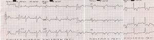 Eletrocardiograma de 12 derivações na admissão do segundo episódio de infarto do miocárdio.