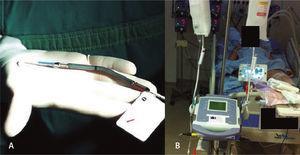 (A) Dispositivo de assistência ventricular Impella® 2.5. (B) Dispositivo de assistência ventricular Impella® 2.5 instalado.
