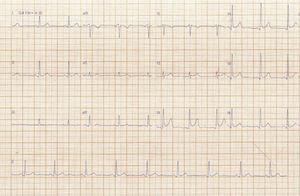 Eletrocardiograma de admissão na unidade de dor torácica.