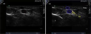 Imagen por ultrasonido del nervio safeno. NS: nervio safeno; T: tibia; VSM: Vena safena mayor. Fuente: autores.